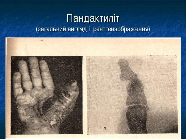 Пандактиліт (загальний вигляд і рентгензображення)