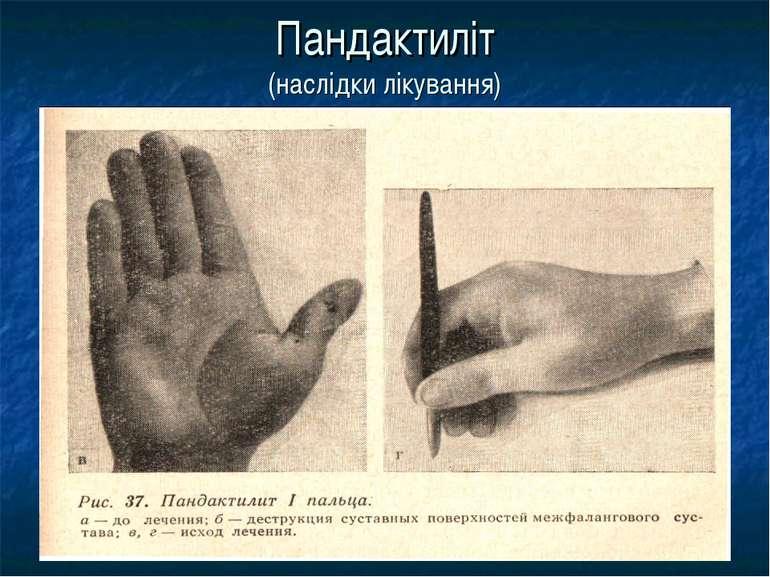 Пандактиліт (наслідки лікування)