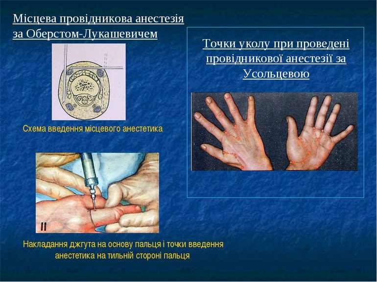 Місцева провідникова анестезія за Оберстом-Лукашевичем Схема введення місцево...