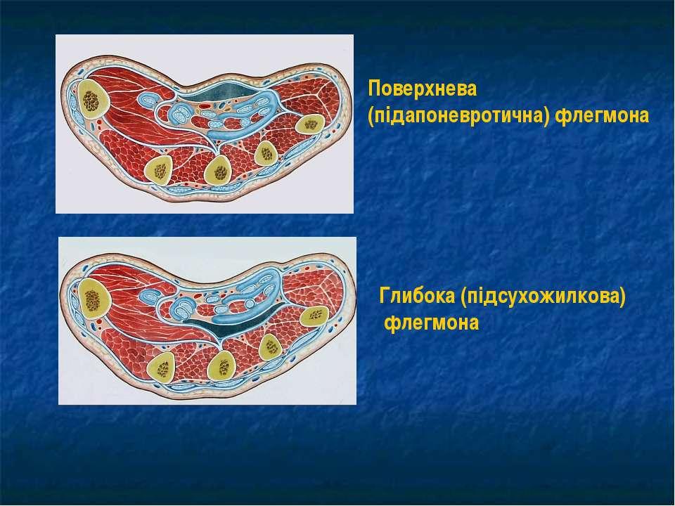 Поверхнева (підапоневротична) флегмона Глибока (підсухожилкова) флегмона