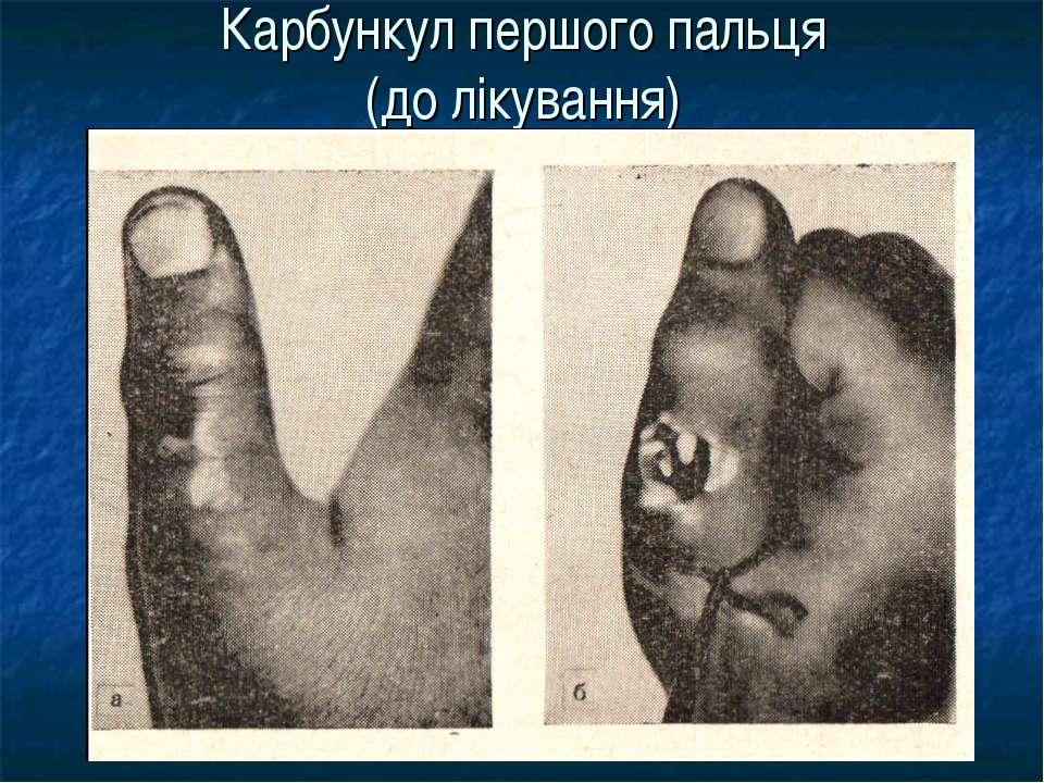 Карбункул першого пальця (до лікування)