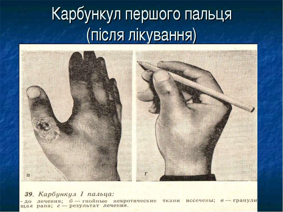 Карбункул першого пальця (після лікування)