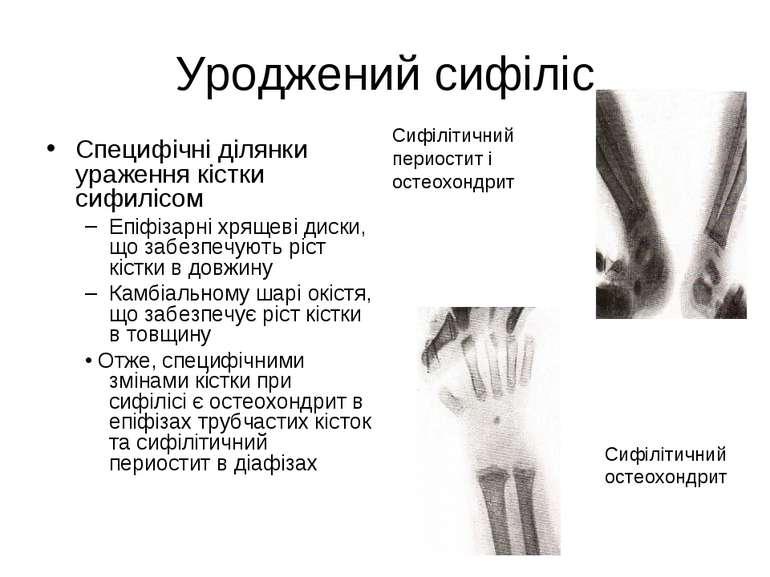 Уроджений сифіліс Специфічні ділянки ураження кістки сифилісом Епіфізарні хря...
