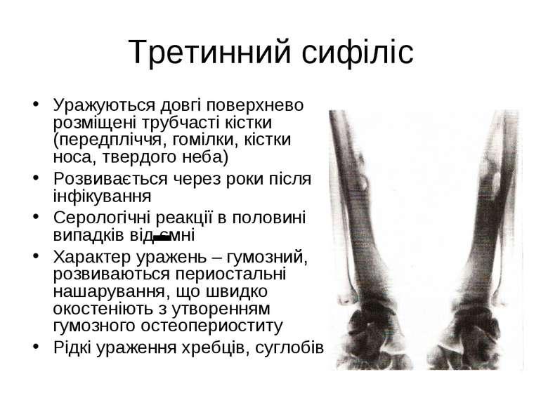 Третинний сифіліс Уражуються довгі поверхнево розміщені трубчасті кістки (пер...
