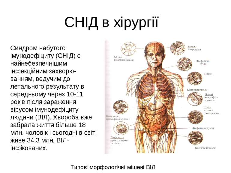 СНІД в хірургії Типові морфологічні мішені ВІЛ Синдром набутого імунодефіциту...