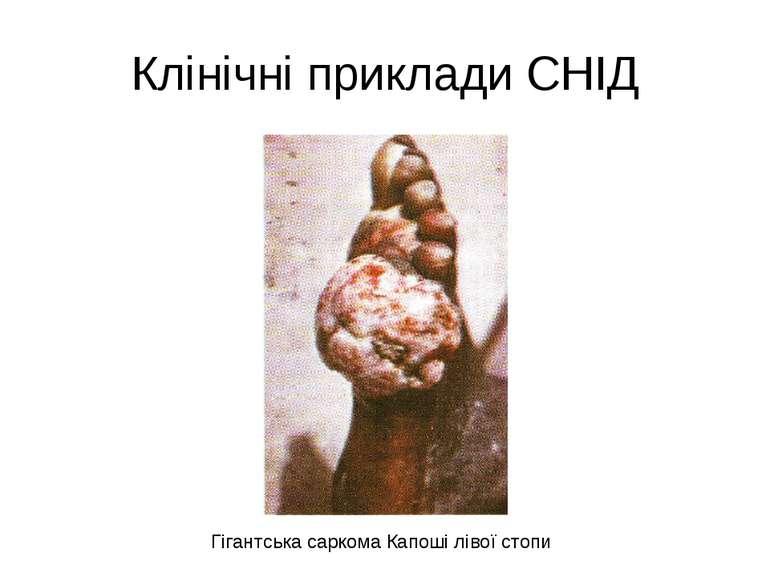 Клінічні приклади СНІД Гігантська саркома Капоші лівої стопи