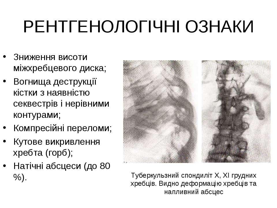 РЕНТГЕНОЛОГІЧНІ ОЗНАКИ Зниження висоти міжхребцевого диска; Вогнища деструкці...