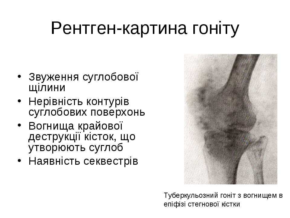 Рентген-картина гоніту Звуження суглобової щілини Нерівність контурів суглобо...