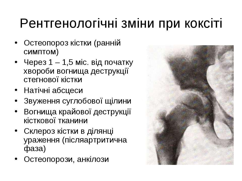 Рентгенологічні зміни при коксіті Остеопороз кістки (ранній симптом) Через 1 ...