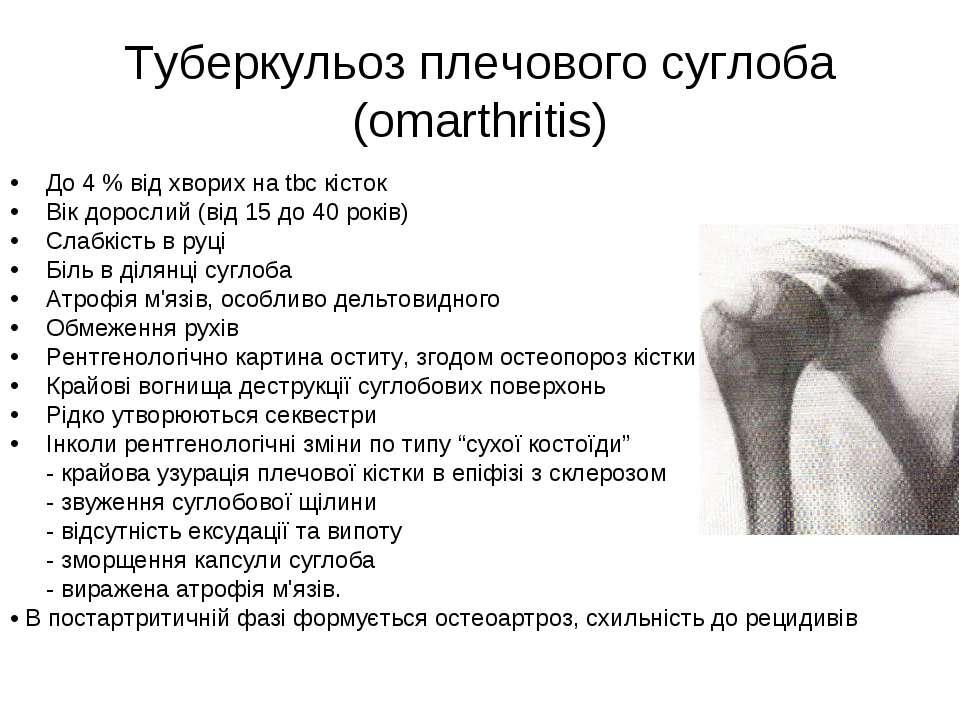 Туберкульоз плечового суглоба (omarthritis) До 4 % від хворих на tbc кісток В...