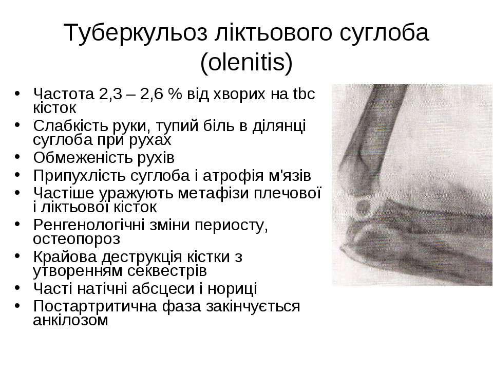 Туберкульоз ліктьового суглоба (olenitis) Частота 2,3 – 2,6 % від хворих на t...