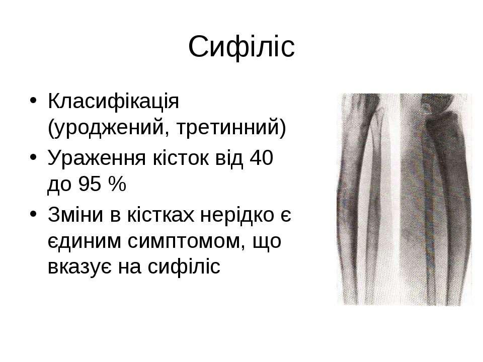 Сифіліс Класифікація (уроджений, третинний) Ураження кісток від 40 до 95 % Зм...