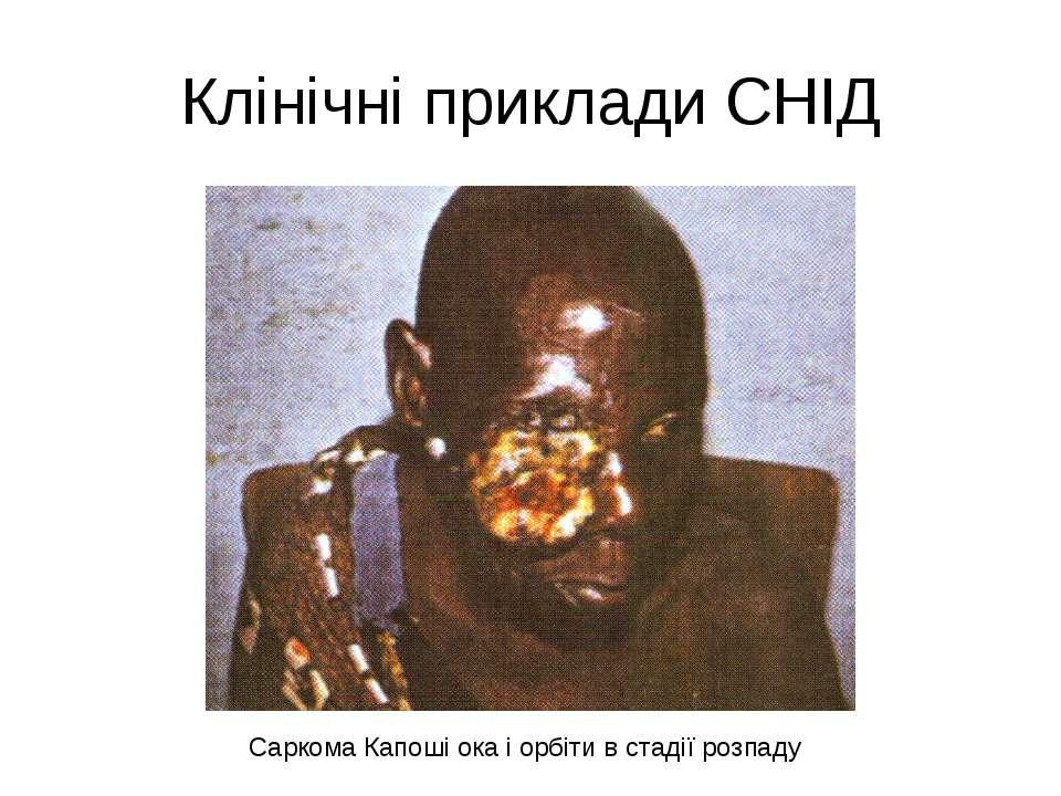 Клінічні приклади СНІД Саркома Капоші ока і орбіти в стадії розпаду