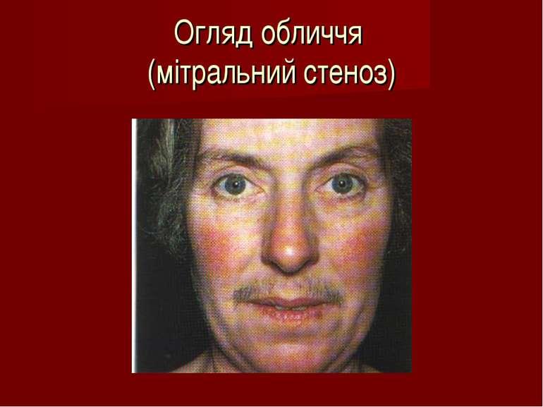 Огляд обличчя (мітральний стеноз)