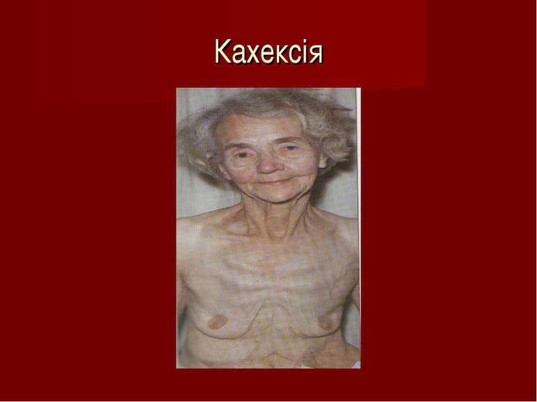Кахексія