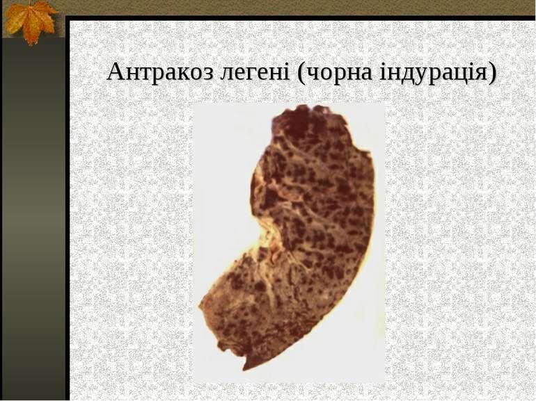 Антракоз легені (чорна індурація)