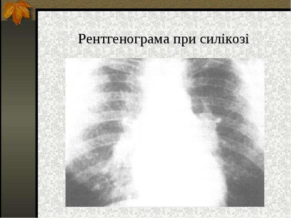 Рентгенограма при силікозі