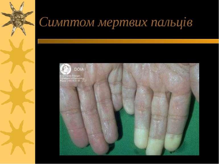 Симптом мертвих пальців