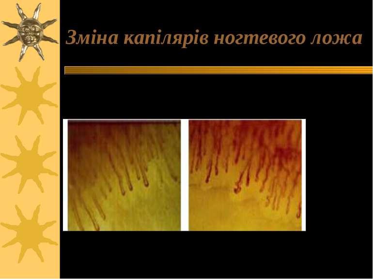 Зміна капілярів ногтевого ложа