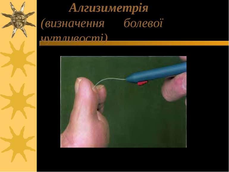 Алгизиметрія (визначення болевої чутливості)