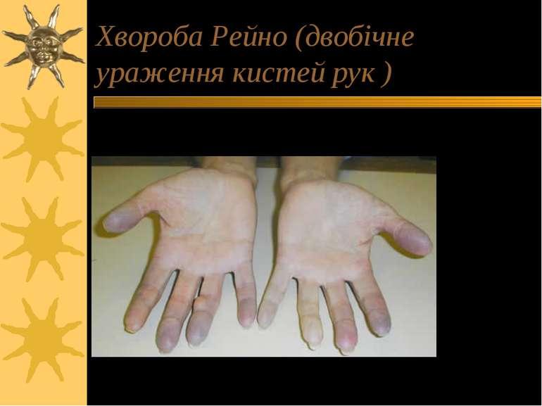 Хвороба Рейно (двобічне ураження кистей рук )