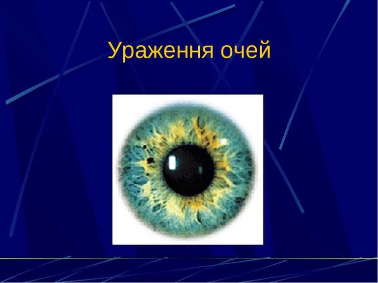 Ураження очей