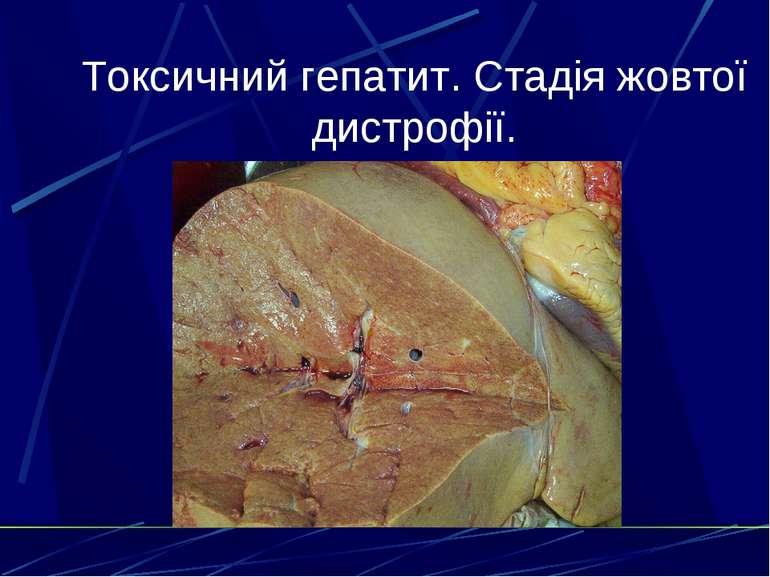 Токсичний гепатит. Стадія жовтої дистрофії.