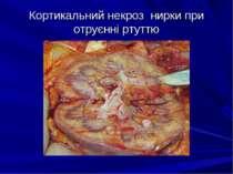 Кортикальний некроз нирки при отруєнні ртуттю