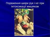 Пораження шкіри рук і ніг при інтоксикації мишяком