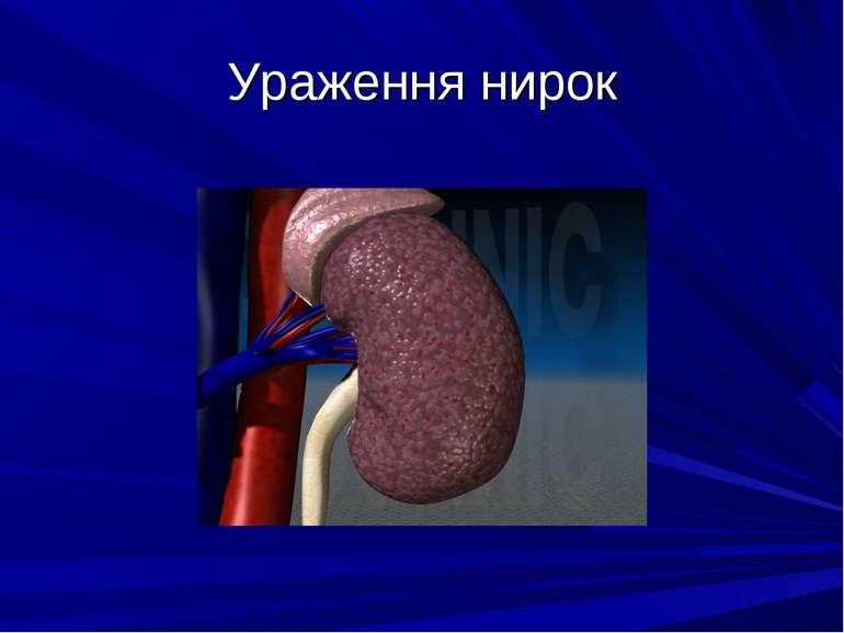 Ураження нирок