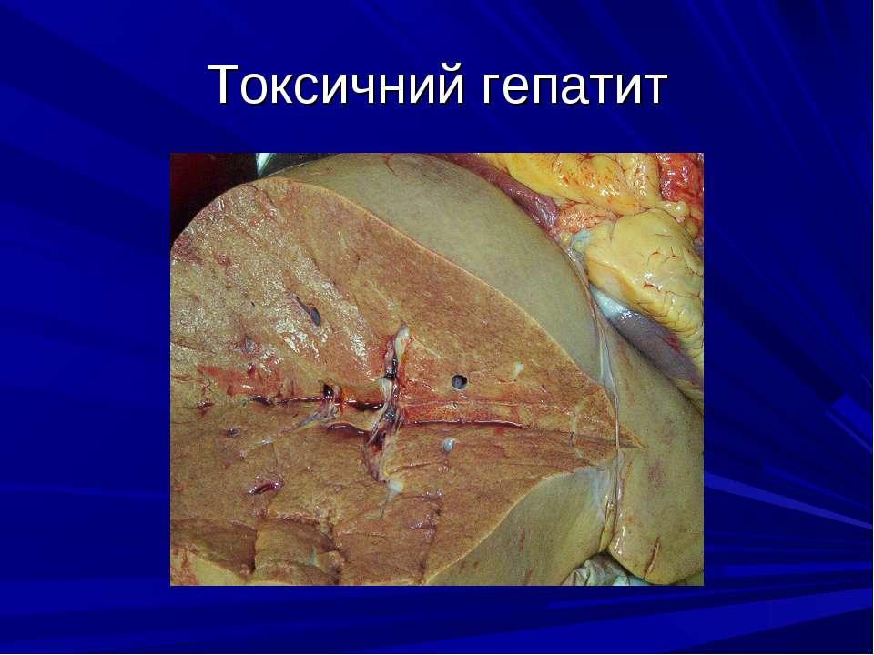 Токсичний гепатит