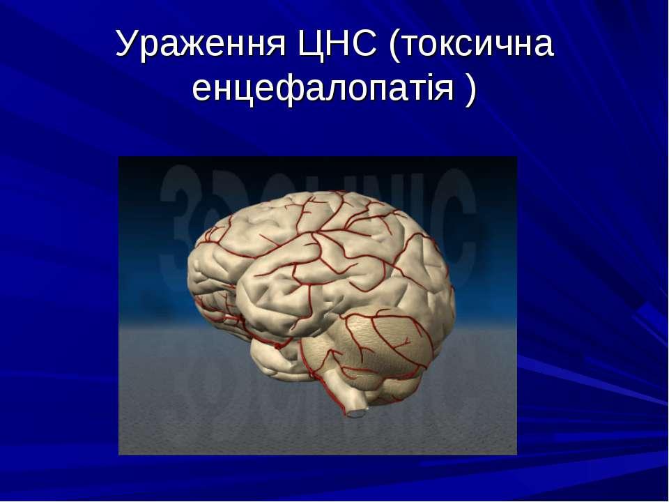 Ураження ЦНС (токсична енцефалопатія )