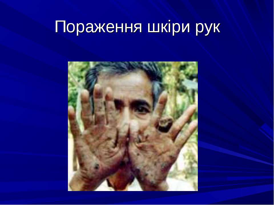 Пораження шкіри рук