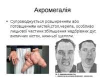Супроводжується розширенням або потовщенням кистей,стоп,черепа, особливо лиць...