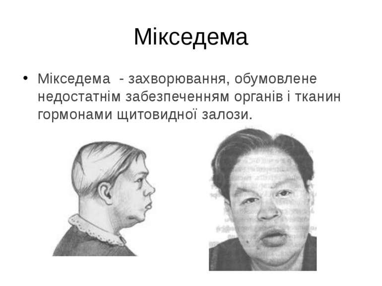 Мікседема - захворювання, обумовлене недостатнім забезпеченням органів і ткан...
