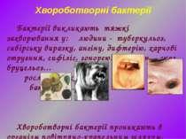 Бактерії викликають тяжкі захворювання у: людини - туберкульоз, сибірську вир...