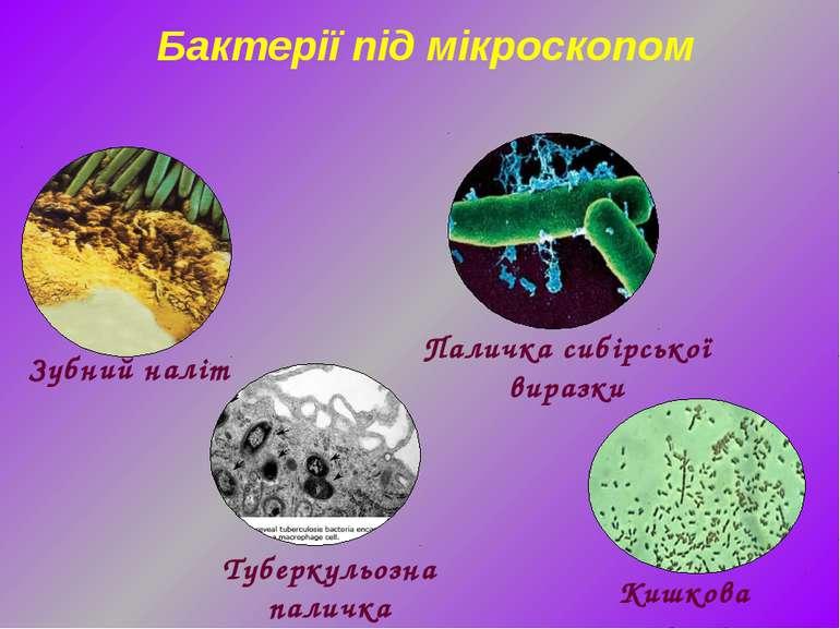Кишкова паличка Бактерії під мікроскопом Зубний наліт Паличка сибірської вира...