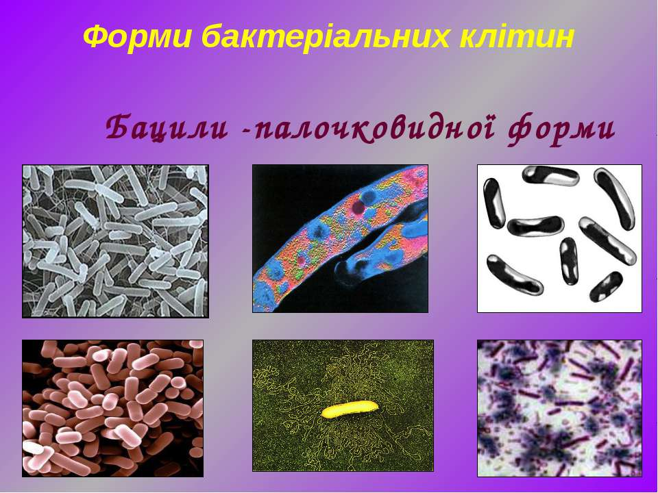Форми бактеріальних клітин Бацили -палочковидної форми