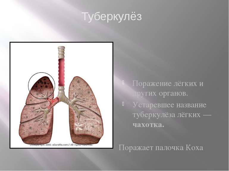 Поражение лёгких и других органов. Устаревшее название туберкулёза лёгких— ч...