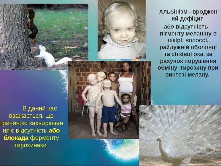 Альбінізм-вродженийдефіцит або відсутність пігменту меланіну в шкірі, воло...