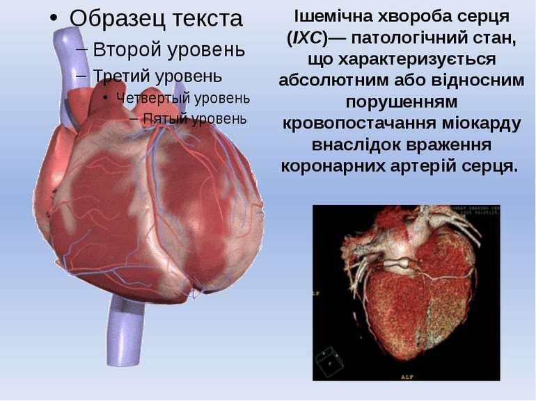 Ішемічна хвороба серця (ІХС)— патологічний стан, що характеризується абсолютн...