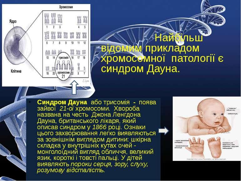 Найбільш відомим прикладом хромосомної патології є синдром Дауна. Синдром Дау...