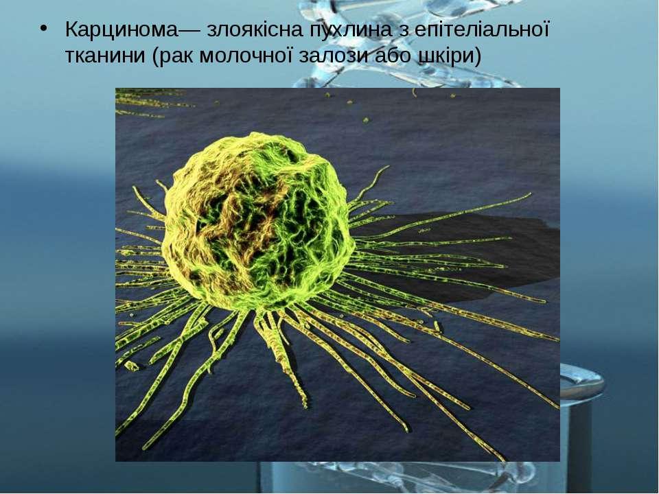 Карцинома— злоякісна пухлина з епітеліальної тканини (рак молочної залози або...