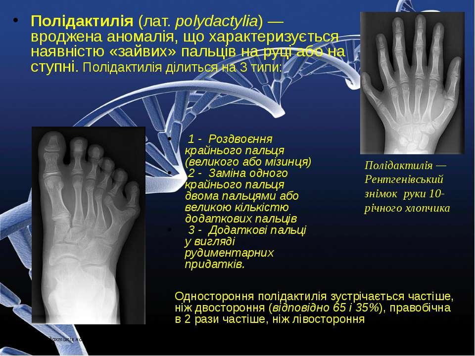 Полідактилія (лат. polydactylia) — вроджена аномалія, що характеризується ная...