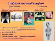 Спадкові аномалії кінцівок Синдактилія Арахнодактилія Павучі пальці. Кисть ви...