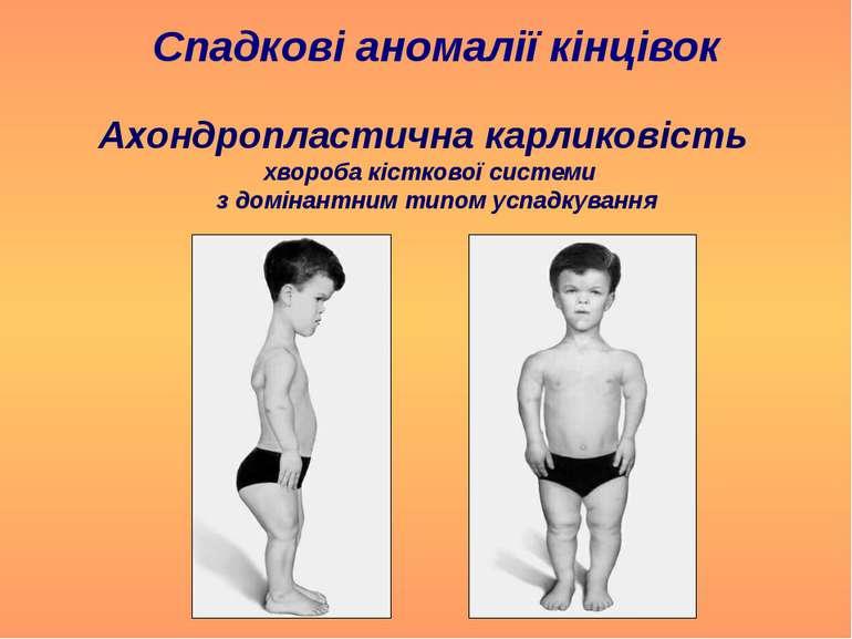 Спадкові аномалії кінцівок Ахондропластична карликовість хвороба кісткової си...