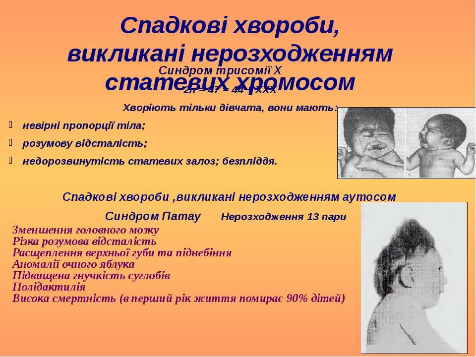 Спадкові хвороби, викликані нерозходженням статевих хромосом Синдром трисомії...