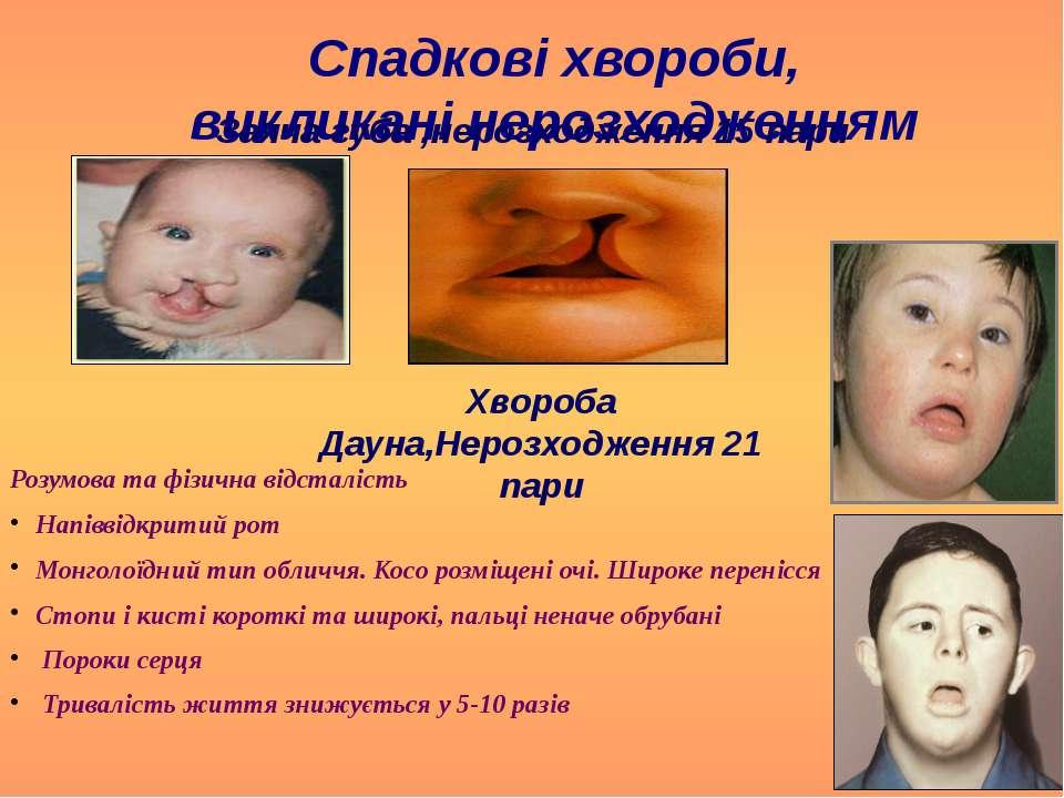 Спадкові хвороби, викликані нерозходженням аутосом Заяча губа ,нерозходження ...