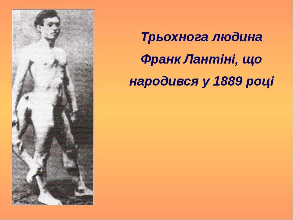 Трьохнога людина Франк Лантіні, що народився у 1889 році