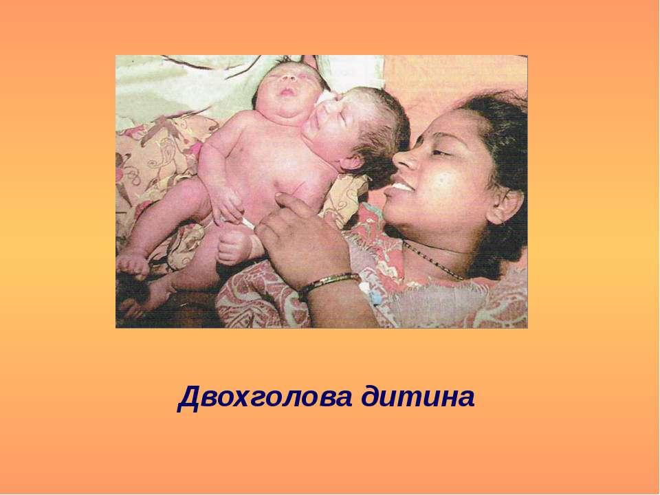Двохголова дитина